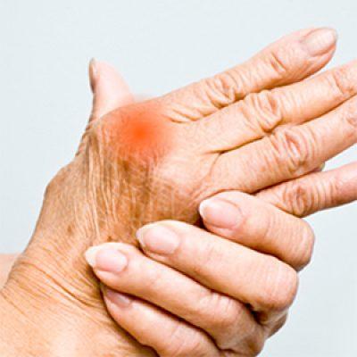 Arthritis Sufferers: Free CBD Access
